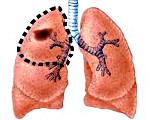 Kasvain Keuhkoissa Oireet