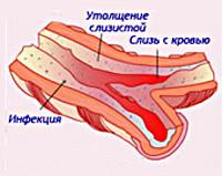 Keuhko Fibroosi
