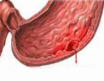 Hypovolemia Oireet